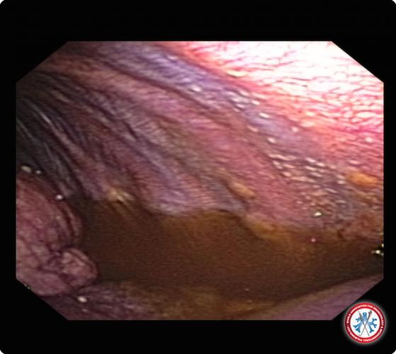 5500cc5c0e576 Pleural sarcoidosis