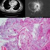 5dd6207293feb Pulmonary Hamartoma   IMAGE 02