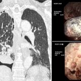 5dd6207294516 Malignant trapped lung   IMAGE 03